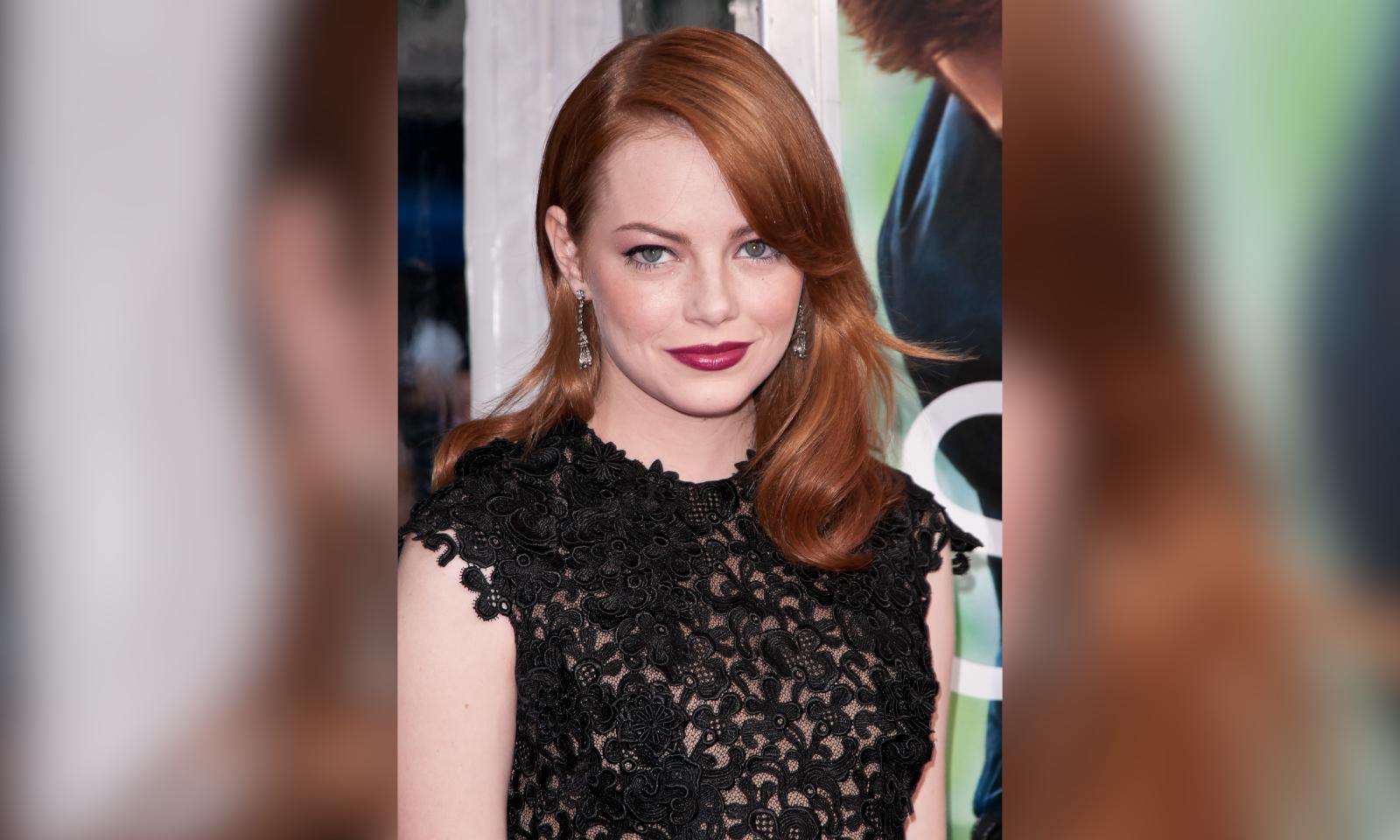 Emma Stone Injures Shoulder After 'Slipping On A Floor' — unCrazed